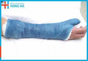Điều trị gãy xương tại Bệnh viện Đa khoa Hồng Hà