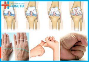 Điều trị bệnh viêm đa khớp tại Bệnh viện Hồng Hà