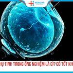 Thụ tinh trong ống nghiệm IVF là gì? Phương pháp IVF có tốt không?