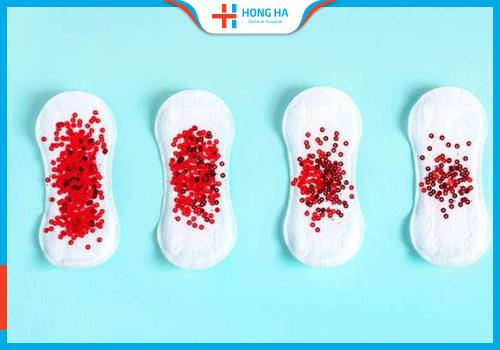 Rong kinh là một triệu chứng có thể xảy ra sau mổ u nang buồng trứng