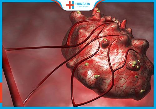 U nang buồng trứng gây nguy hiểm cho người bệnh