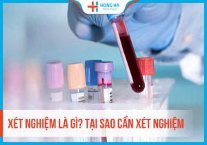 Xét nghiệm là gì? Vai trò của xét nghiệm trong quá trình điều trị bệnh