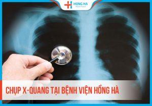 Chụp X-quang là gì? Những thông tin hữu ích cần biết