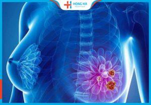 Tầm soát ung thư vú tại Bệnh viện Đa khoa Hồng Hà