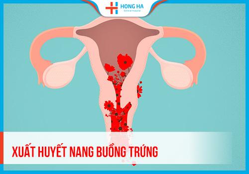 Xuất huyết nang buồng trứng là gì? Nguyên nhân, biểu hiện và cách điều trị