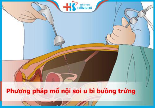 mổ nội soi u bì buồng trứng
