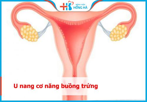 nang cơ năng buồng trứng là gì