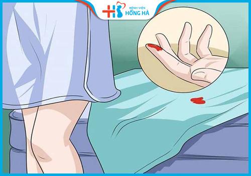 chảy máu sau chọc hút trứng