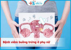 Viêm buồng trứnglà gì? Nguyên nhân và biểu hiện của bệnh như thế nào?