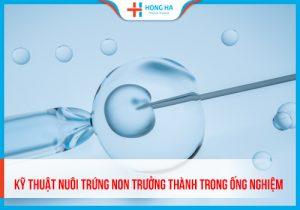 IVM- Kỹ thuật nuôi trứng non trưởng thành trong ống nghiệm