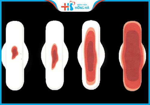 xuất huyết âm đạo khi phá thai bằng thuốc