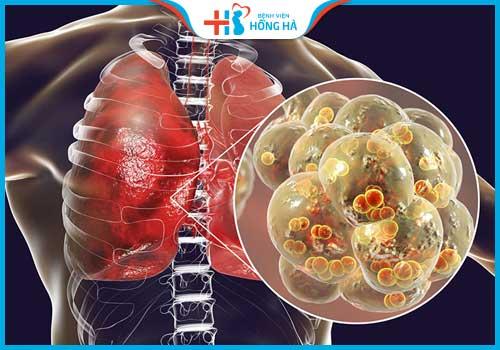 thủy đậu có vô sinh không viêm phổi