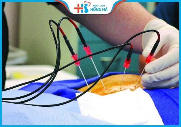 Đốt điện viêm lộ tuyến cổ tử cung