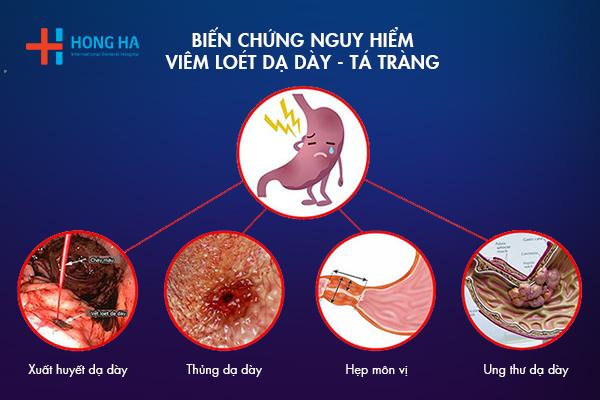 Những biến chứng của bệnh viêm loét dạ dày