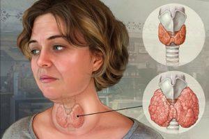 Bướu cổ: Dấu hiệu, nguyên nhân và cách điều trị bệnh