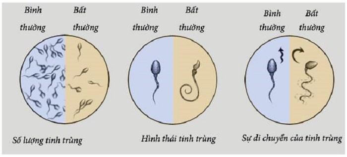 Vô sinh ở nam giới gồm 2 loại