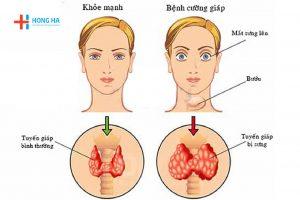 Cường giáp: Dấu hiệu, nguyên nhân và cách điều trị bệnh