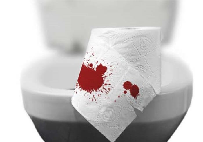 Nguyên nhân dẫn đến Đại tiện ra máu