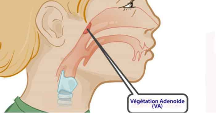 Biểu hiện rõ ràng của bệnh viêm VA