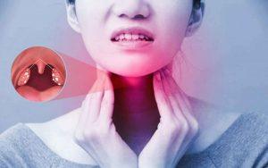 Viêm Amidan : Dấu hiệu, nguyên nhân và phương pháp điều trị