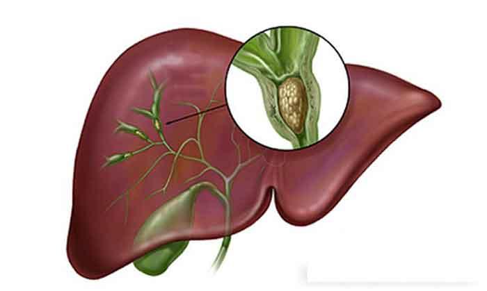 Những chẩn đoán xác định chính xác bệnh sỏi gan