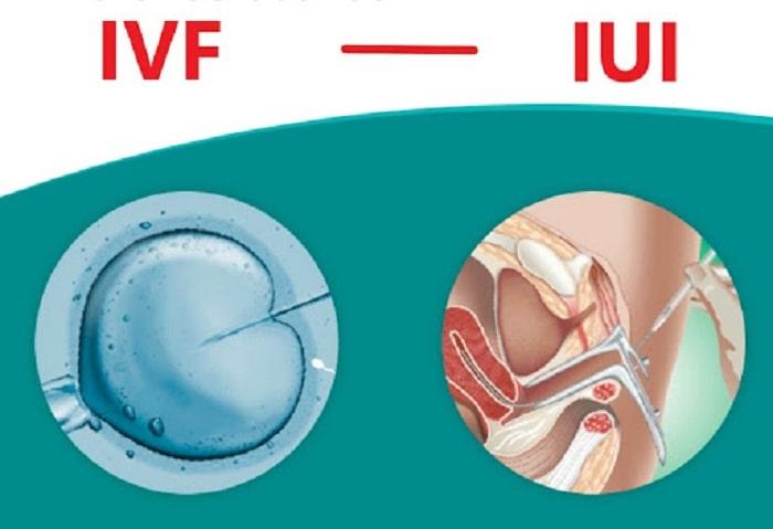 Đối tượng áp dụng của IVF và IUI