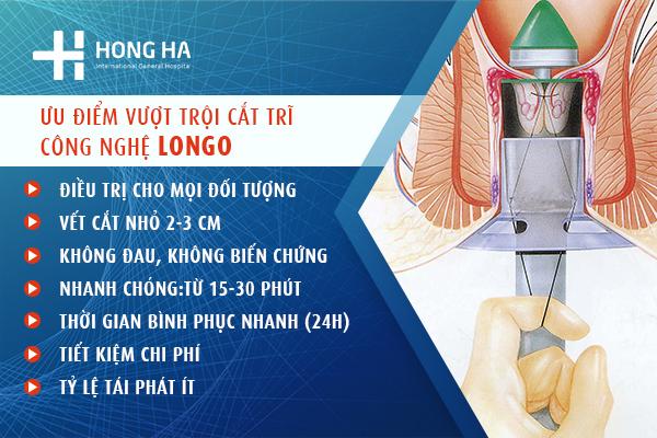 Cắt trĩ bằng công nghệ Longo
