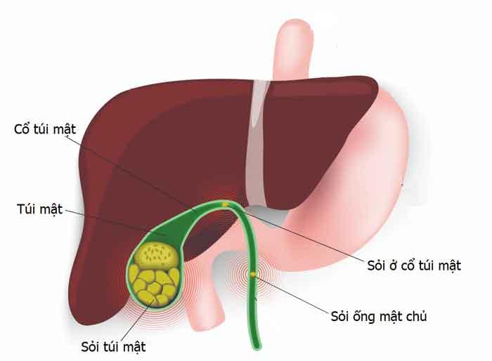 Những nguyên nhân gây ra bệnh sỏi túi mật