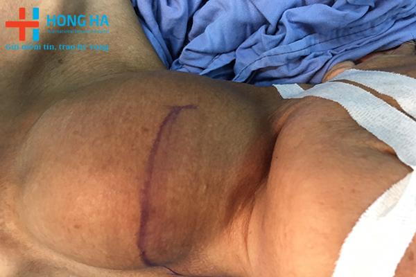 Bệnh nhân 65 tuổi kích thước bướu cổ lớn 20cm.