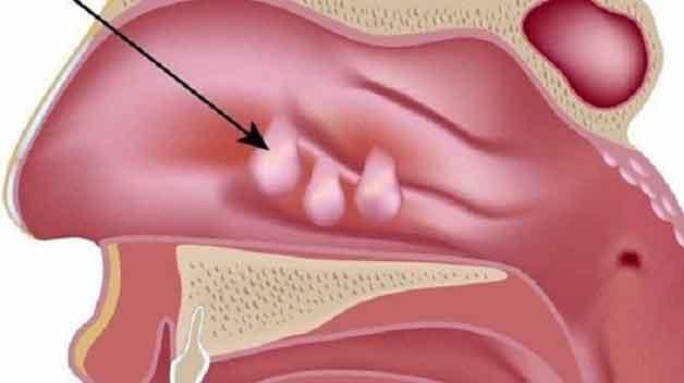 Bệnh polyp mũi là bệnh thường gặp hiện nay