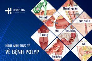 Polyp là gì ? Nguyên nhân, triệu chứng và cách điều
