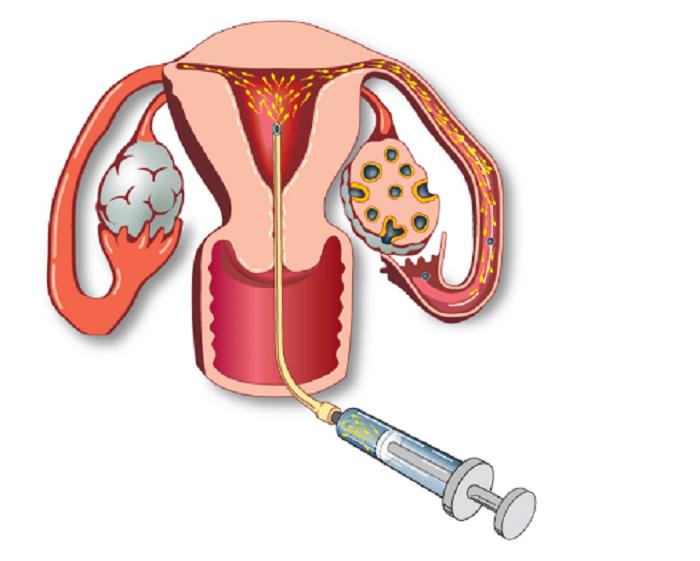 Thụ tinh nhân tạo IUI là tên viết tắt của cụm từ intrauterine insemination