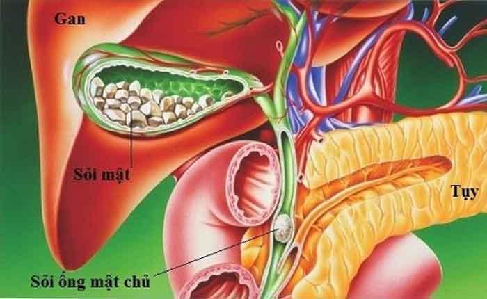 Tổng quan chung về bệnh sỏi ống mật