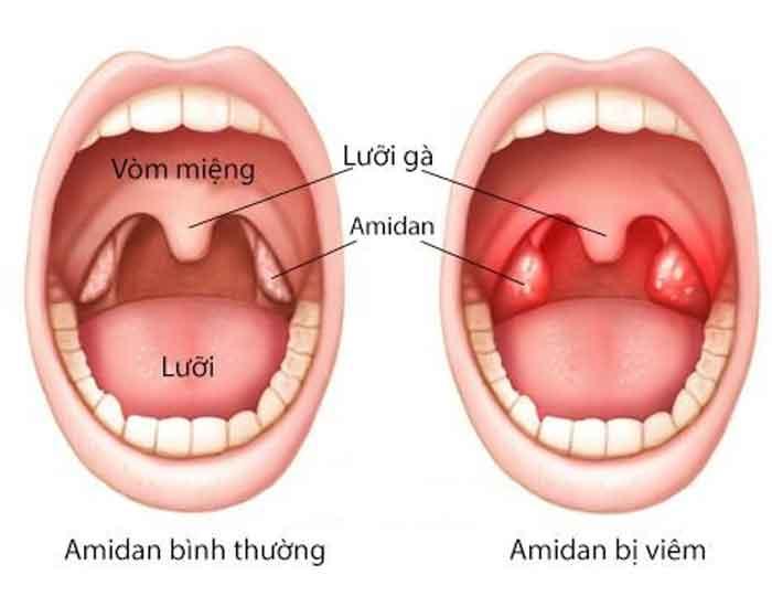 Hình ảnh về hiện tượng viêm Amidan
