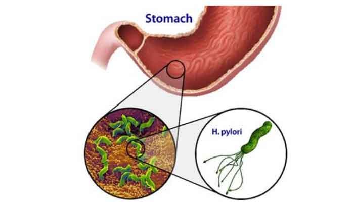 Tiến hành xét nghiệm phân tìm vi khuẩn trong hệ tiêu hóa