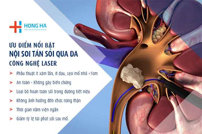 Lợi ích khi tán sỏi bằng công nghệ laser