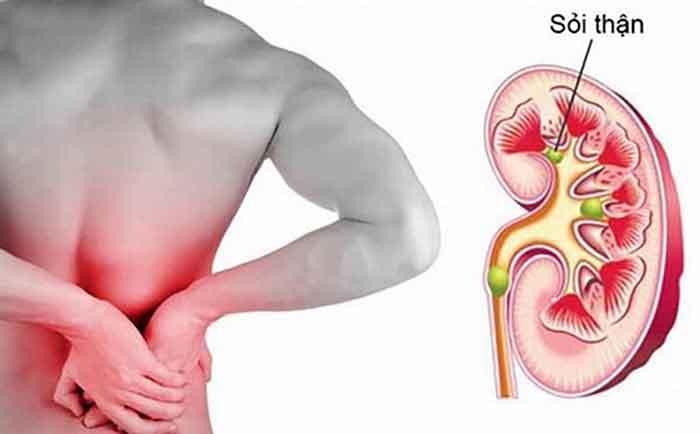 Những dấu hiệu nhận biết của bệnh sỏi thận