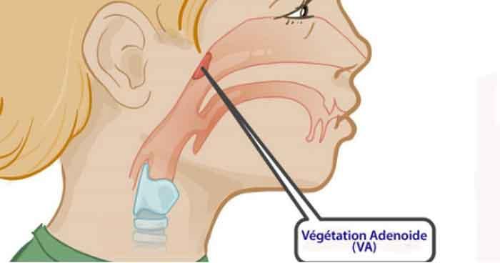 Dấu hiệu viêm VA phổ biến