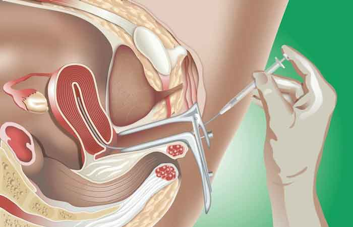 Bơm tinh trùng có đau nhiều không