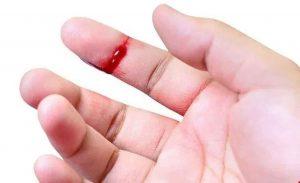Máu báo thai xuất hiện vào thời gian nào? Cần làm gì khi ra máu báo thai