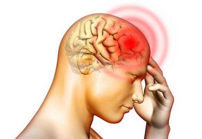 Căn bệnh đau nửa đầu bên phải