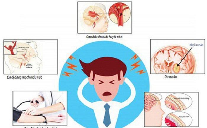 Các triệu chứng thường gặp