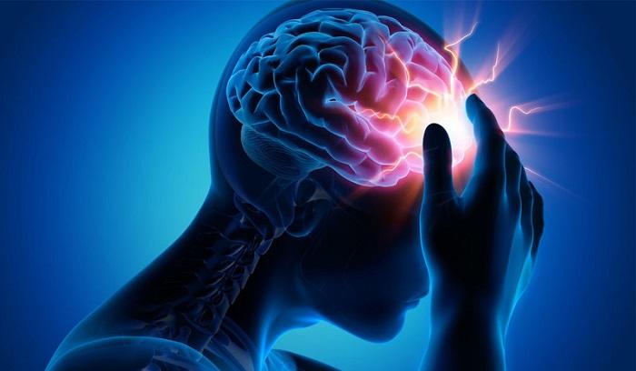 Đối tượng nào có nguy cơ bị bệnh đau nửa đầu