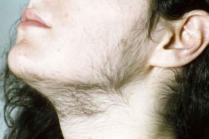 Lông mọc ở nhiều nơi có thể là dấu hiệu ở phụ nữ hiếm con